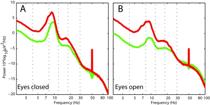 Temporo-insular enhancement of EEG low and high frequencies in