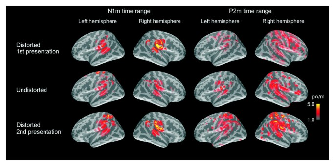 Transient and sustained cortical activity elicited by