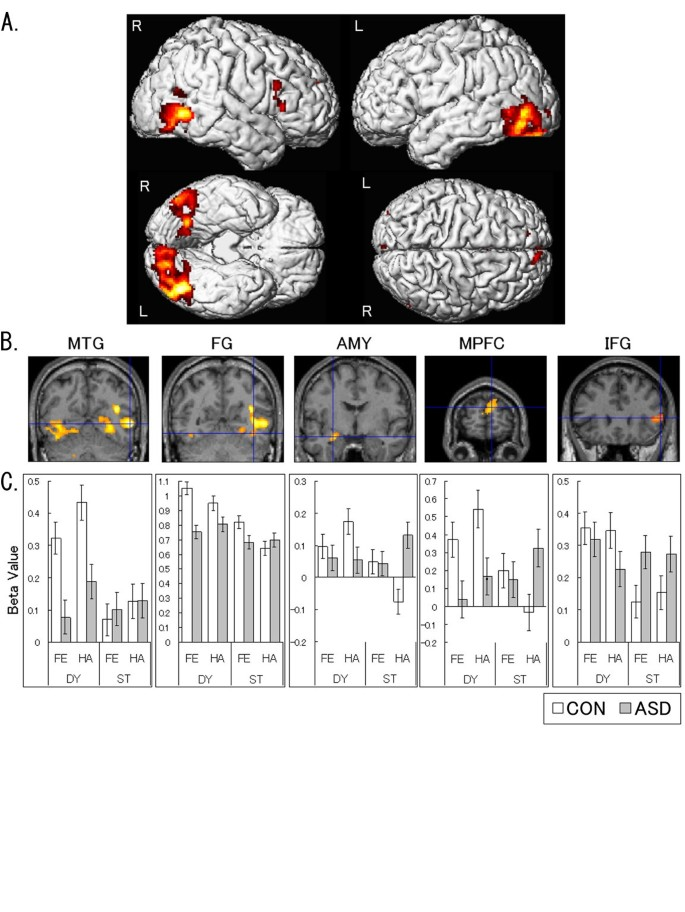 Impaired social brain network for processing dynamic facial ...