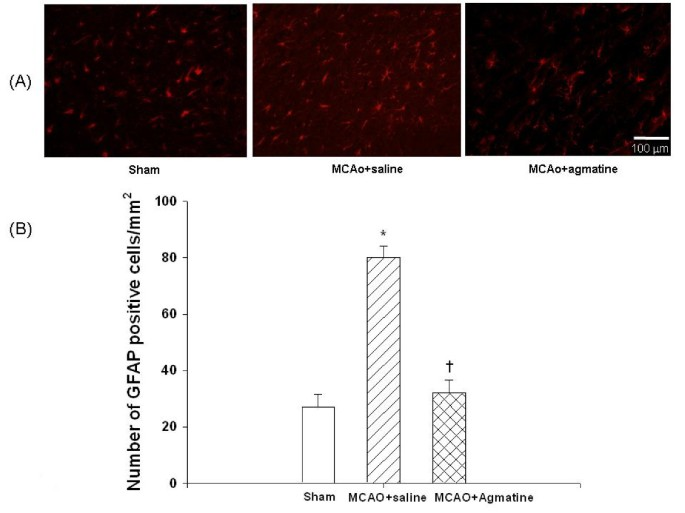Beneficial effect of agmatine on brain apoptosis