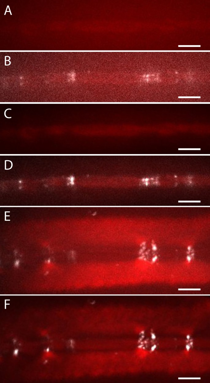 Super-resolution imaging with Pontamine Fast Scarlet 4BS enables