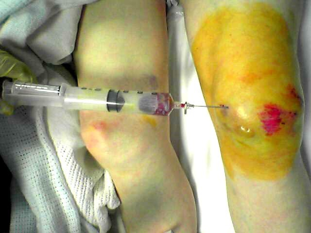 Simple technique for evacuation of traumatic subcutaneous