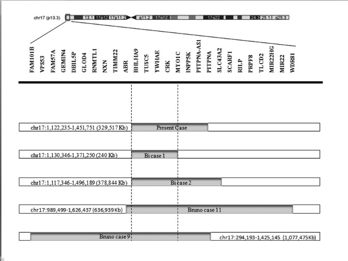 Identification of a rare 17p13 3 duplication including the BHLHA9