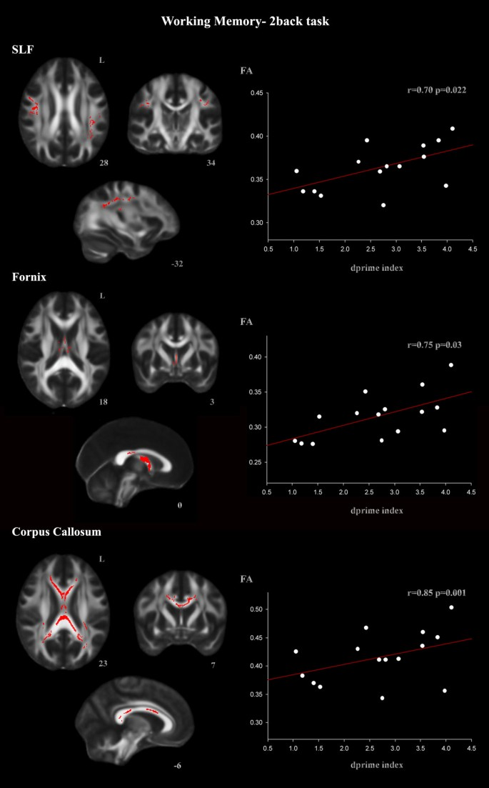 Diffusion tensor imaging differences relate to memory