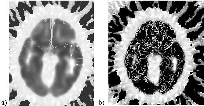 Comparison of manual and semi-automated delineation of regions of ...