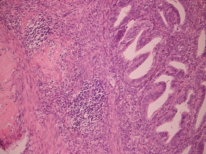 noyes kritériumok endometrium randevú alex o loughlin randevú német lauren