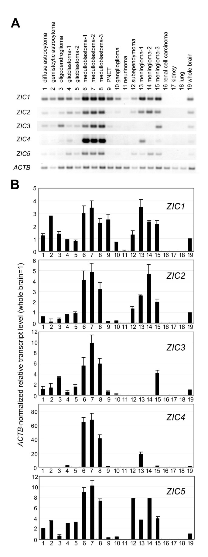 Expression of ZIC family genes in meningiomas and other brain tumors