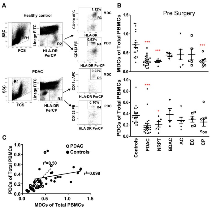 Pancreatic adenocarcinoma exerts systemic effects on the
