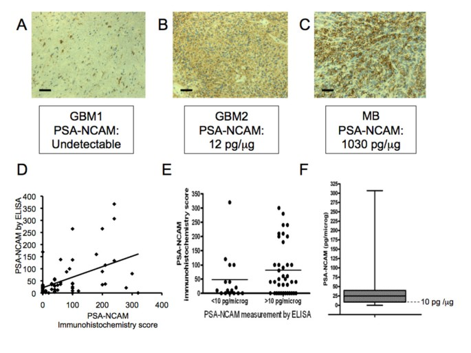 Polysialic Acid Neural Cell Adhesion Molecule (PSA-NCAM) is