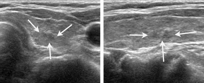 Heterogeneous Echogenicity Of The Underlying Thyroid Parenchyma