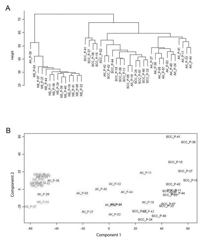 Molecular profiling of cutaneous squamous cell carcinomas