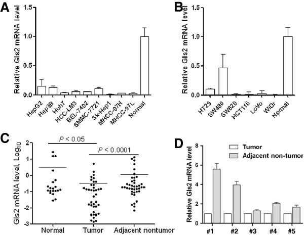 Epigenetic Silencing Of Glutaminase 2 In Human Liver And Colon Cancers Bmc Cancer Full Text