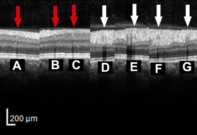 An easy method to differentiate retinal arteries from veins