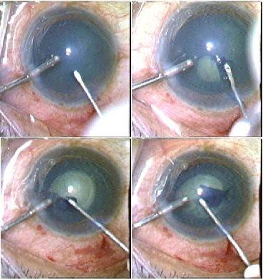 Closed chamber globe stabilization and needle capsulorhexis