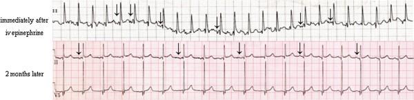 wandering atrial pacemaker