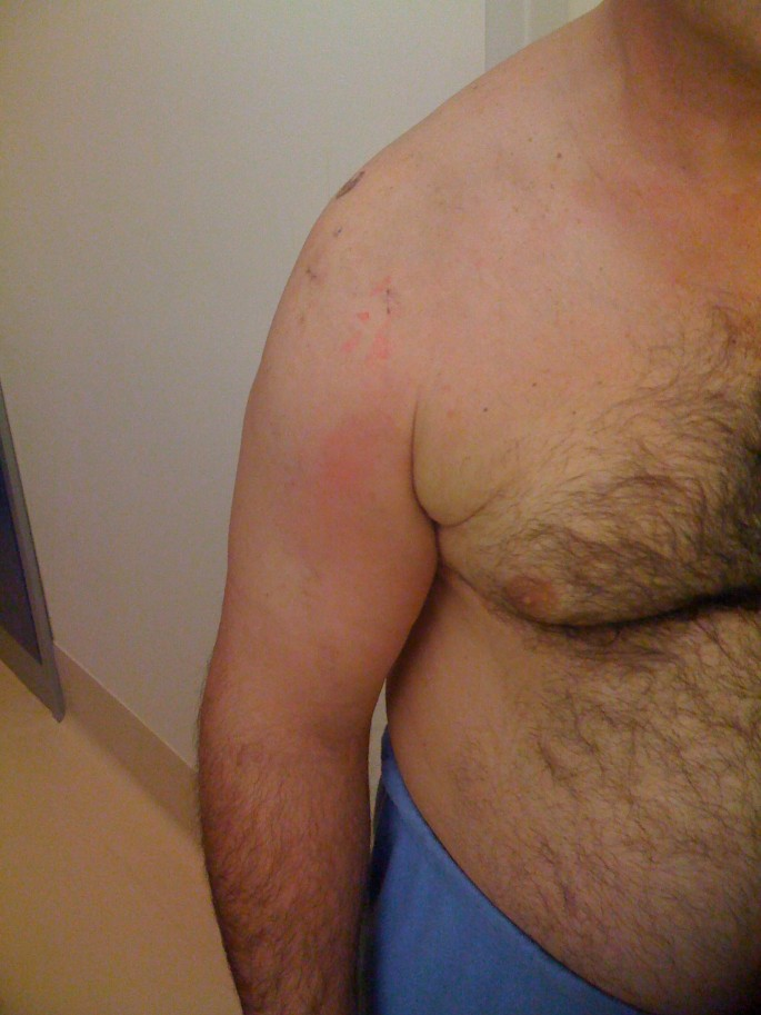 Deep vein thromboembolism after arthroscopy of the shoulder