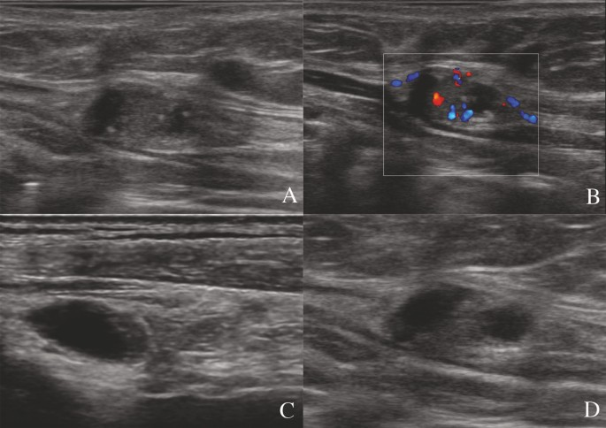 How The Preoperative Ultrasound Examination And Bfi Of The