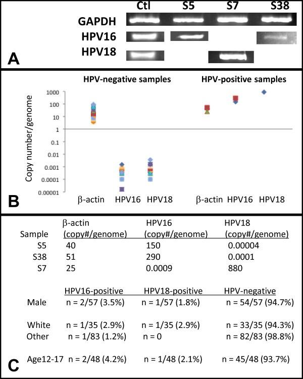 Condilom pe amigdală HPV genotipare în salivă