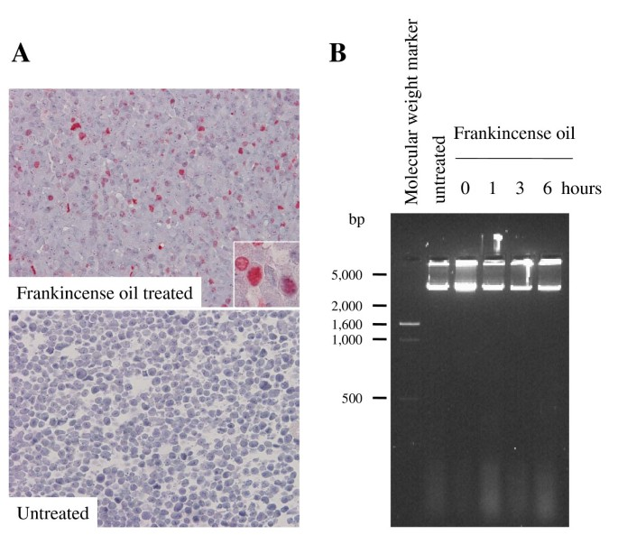 Frankincense Oil Derived From Boswellia Carteri Induces Tumor Cell Specific Cytotoxicity Bmc Complementary Medicine And Therapies Full Text
