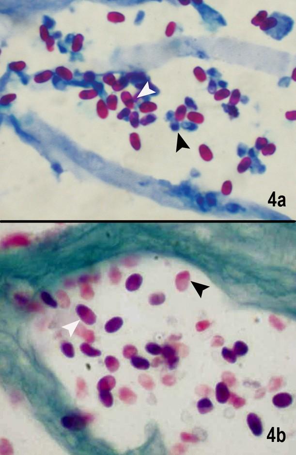 Histopathological evaluation of ocular microsporidiosis by