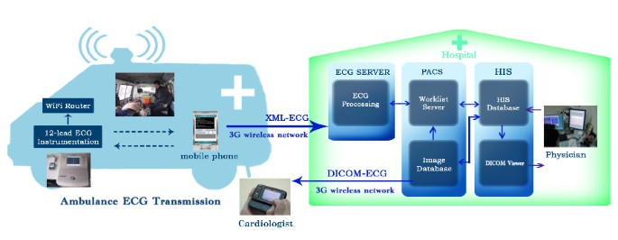 A cloud computing based 12-lead ECG telemedicine service | BMC