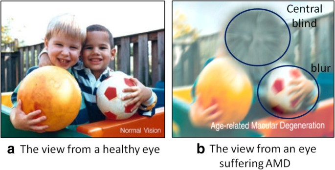 A survey on computer aided diagnosis for ocular diseases | BMC
