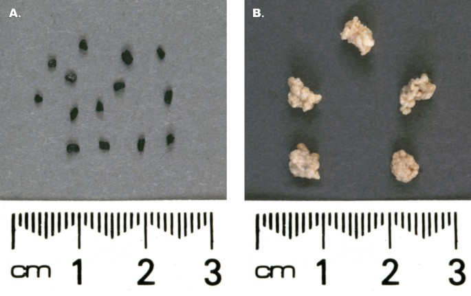 Biofilm reactors for industrial bioconversion processes