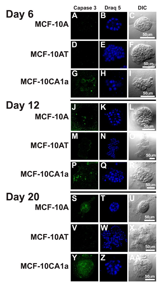 Increasingly transformed MCF-10A cells have a progressively tumor