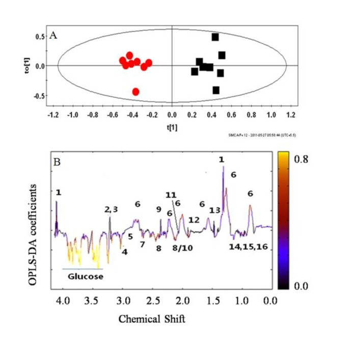 Multivariate modelling with 1 H NMR of pleural effusion in