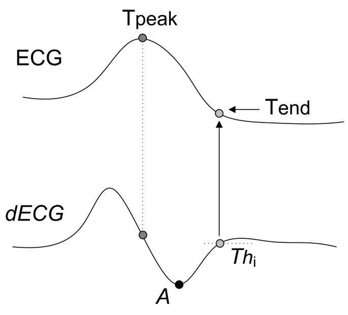 New approach for T-wave end detection on electrocardiogram