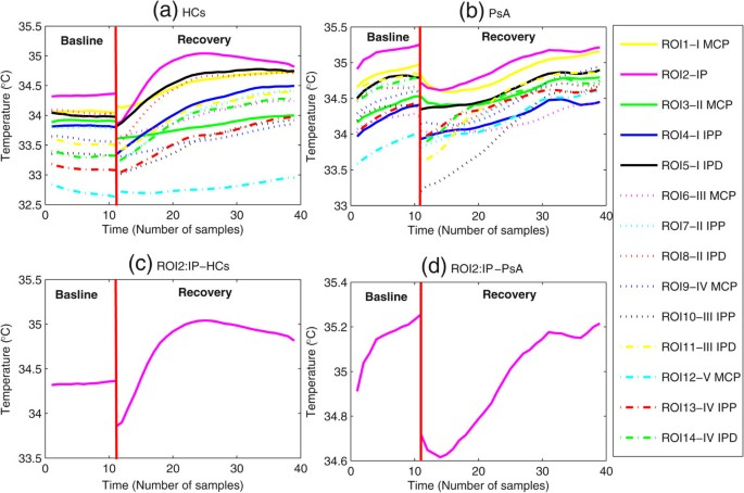 Functional-thermoregulatory model for the differential diagnosis of