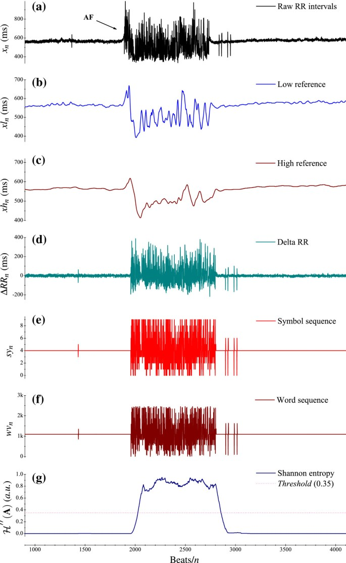 Automatic online detection of atrial fibrillation based on