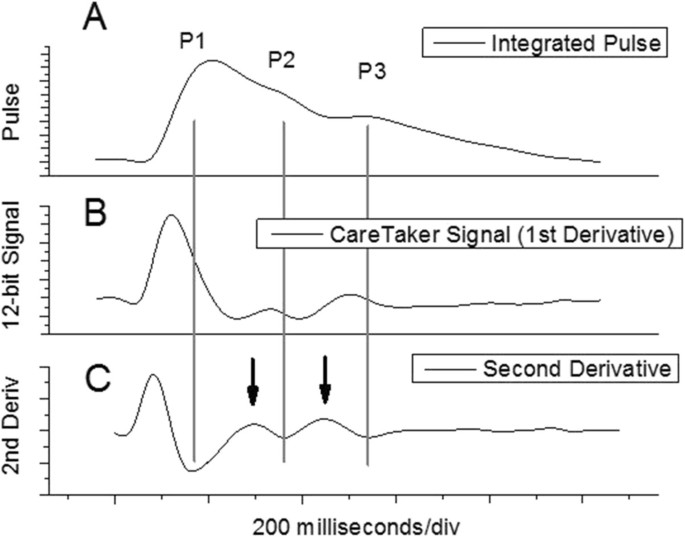 Validation of the pulse decomposition analysis algorithm