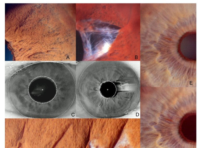 Iris recognition as a biometric method after cataract