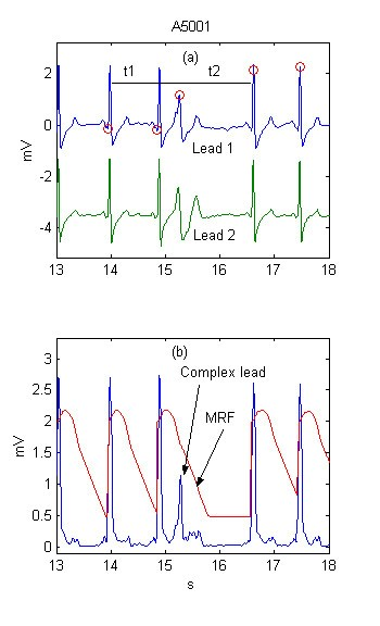 Real time electrocardiogram QRS detection using combined adaptive