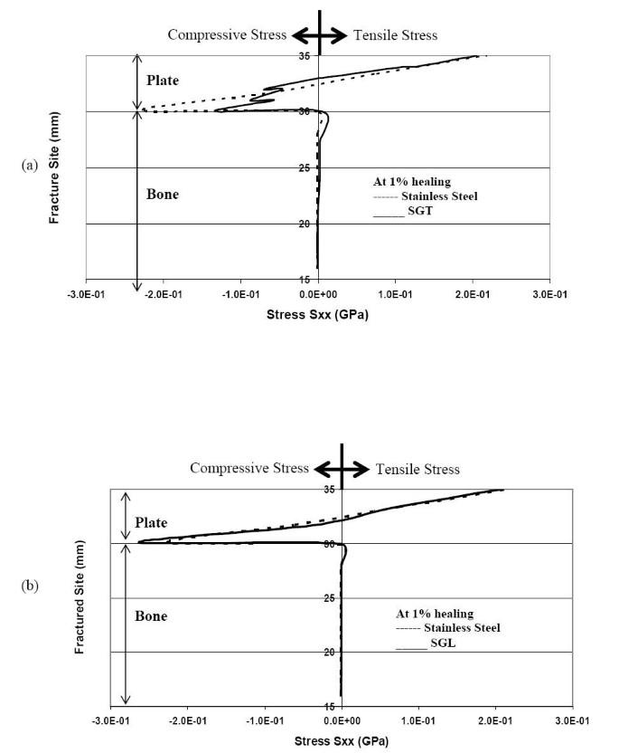 Biomechanics of bone-fracture fixation by stiffness-graded