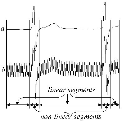Removal of power-line interference from the ECG: a review of