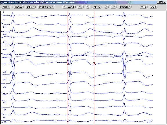 Dataset of manually measured QT intervals in the