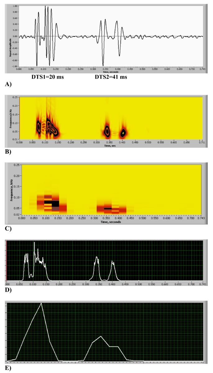 Heart energy signature spectrogram for cardiovascular