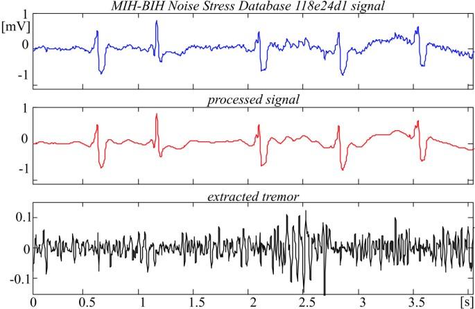 Tremor suppression in ECG | BioMedical Engineering OnLine