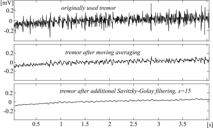 Tremor suppression in ECG   BioMedical Engineering OnLine