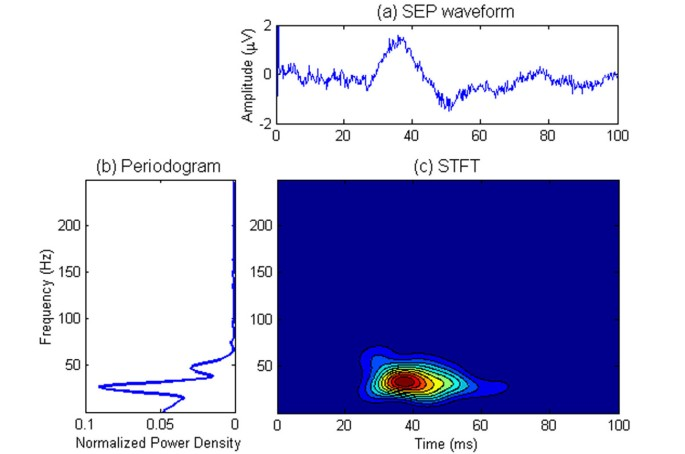 Time-frequency component analysis of somatosensory evoked