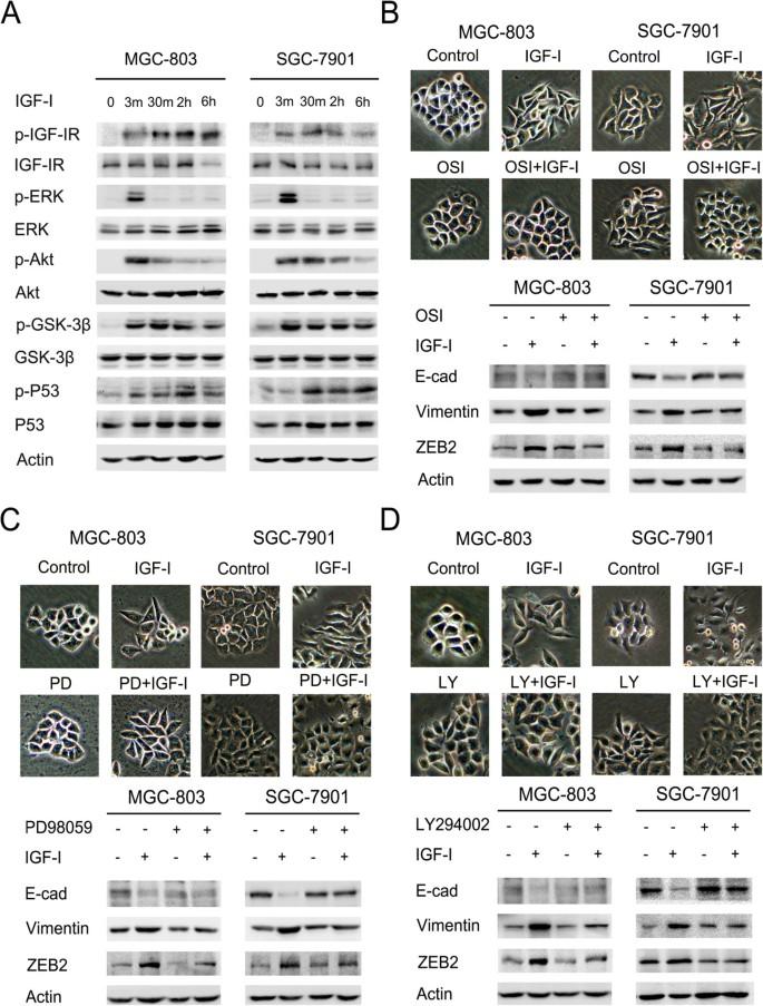 Ubiquitin ligase Cbl-b represses IGF-I-induced epithelial