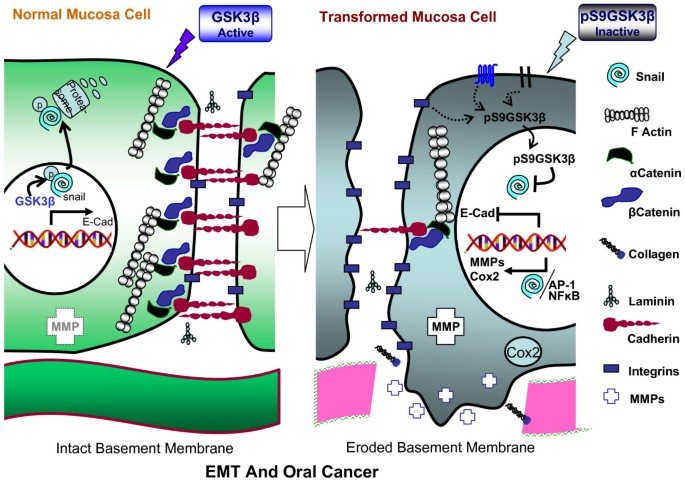 Glycogen synthase kinase 3 beta: can it be a target for oral