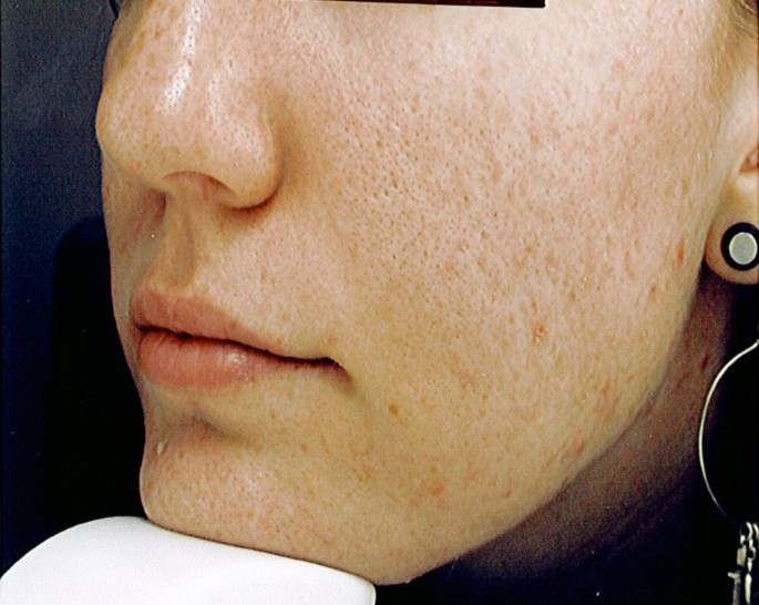Acne vulgaris, mental health and omega-3 fatty acids: a report of