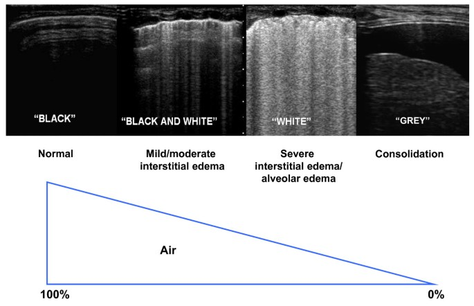 Lung ultrasound: a new tool for the cardiologist