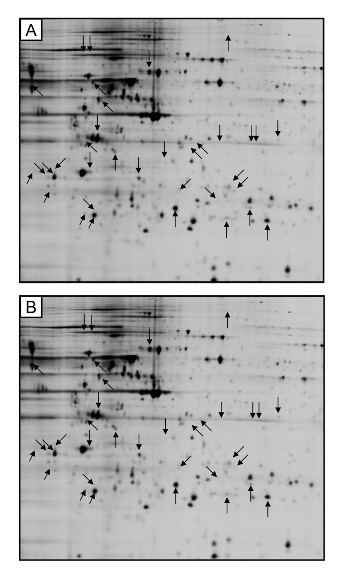 Analysis of proteome response to the mobile phone radiation