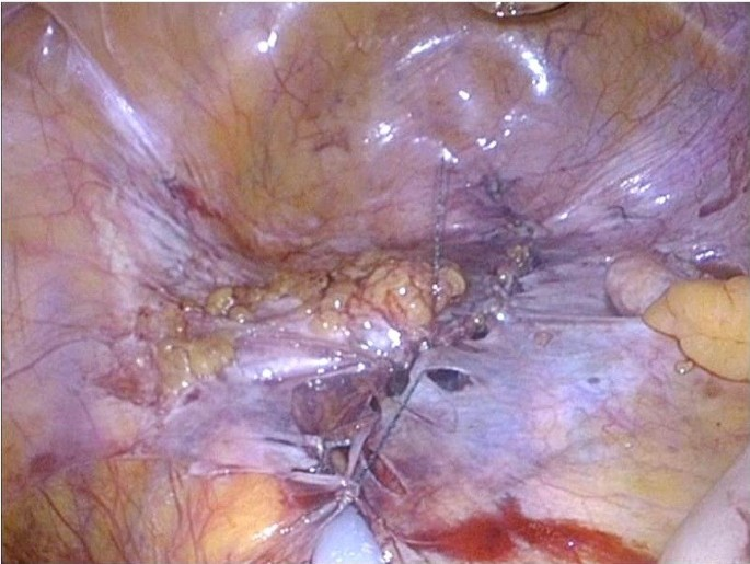 Laparoscopic technique and safety experience with barbed