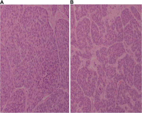 Neuroendocrine Small Cell Rectal Cancer Metastasizing To The Liver A Unique Treatment Strategy Case Report And Review Of The Literature World Journal Of Surgical Oncology Full Text