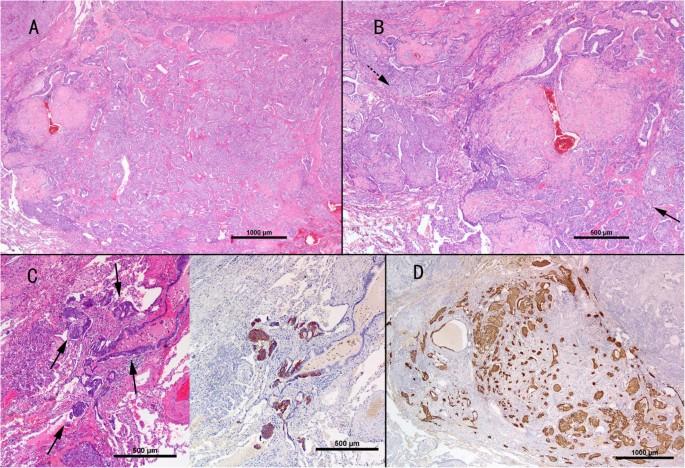 A mixture of carcinoid tumors, extensive neuroendocrine